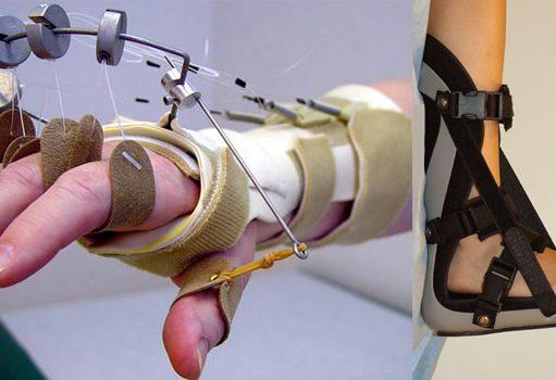 Ortez-Protez Bölümü Taban Puanları, Başarı Sıralaması ve Kontenjanları